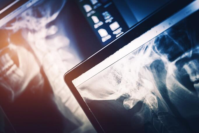 The SpinalCord team has put together a list of key spinal cord injury statistics.