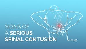 Signs-of-a-spinal-contusion-title-image