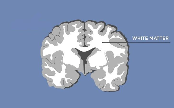 Brain - White Matter