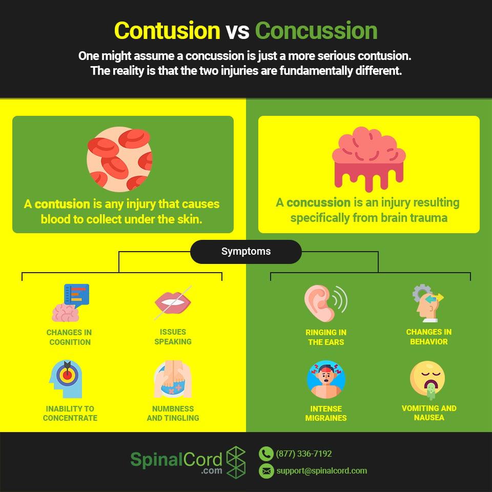 Infographic: Concussion vs Contusion