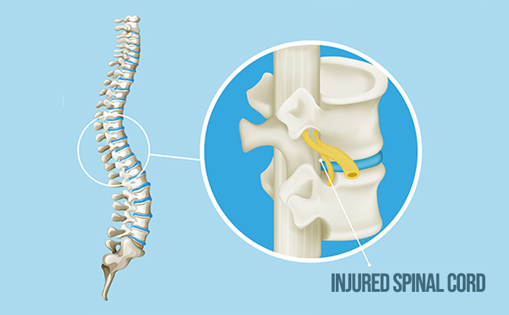Spinal Cord Injury-2