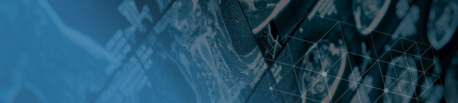 spinalcord-interior-bg.jpg
