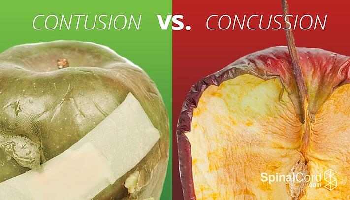 Contusion vs  Concussion: Understanding the Difference