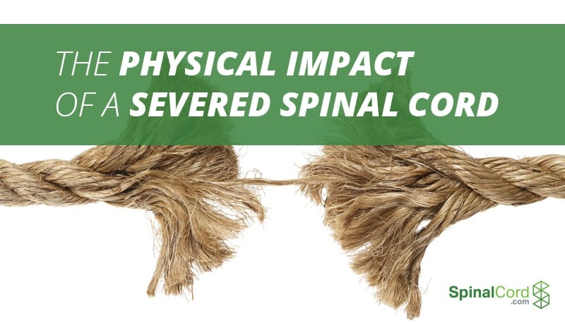 severed spinal cord