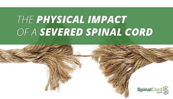 The Physical Impact of a Severed Spinal Cord