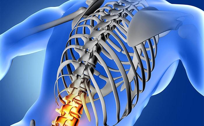 L1-L5-Lumbar-Spine-Injury-CG
