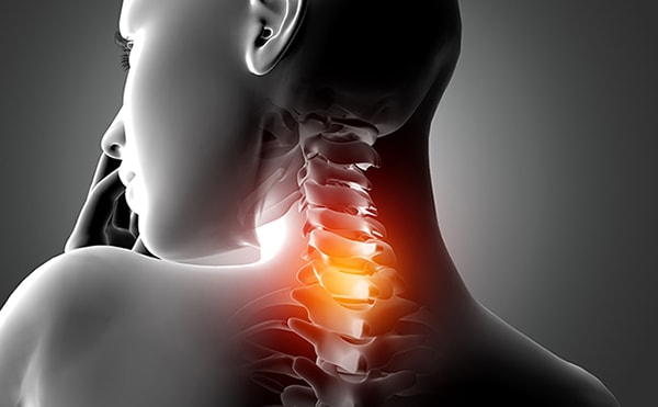 C6-C7-C8-Spinal-Cord-Injury