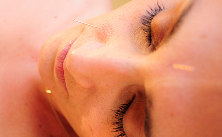 acupuncture in face