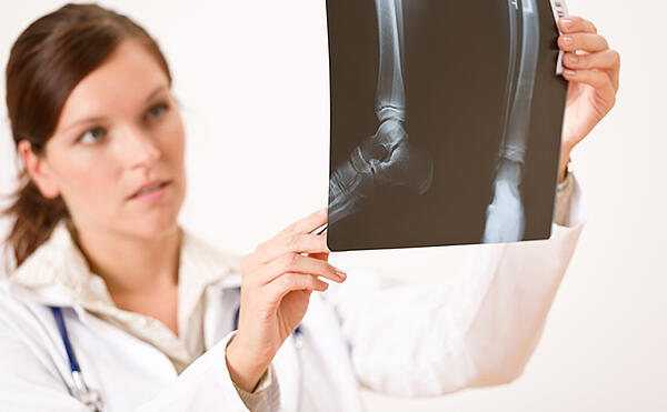 female doctor checking x-ray