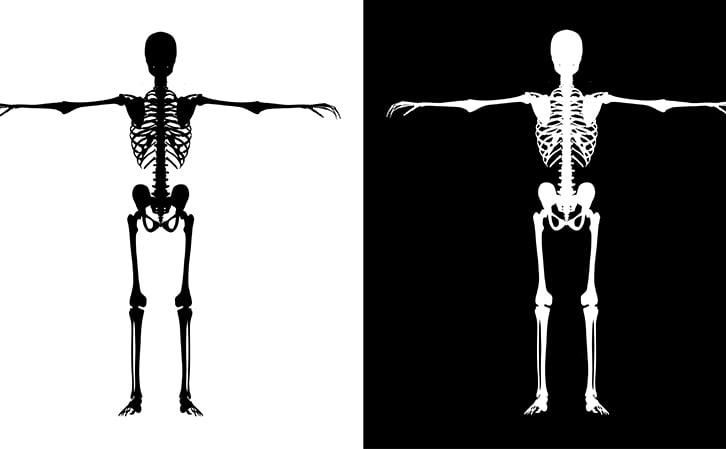 human bone - osteoporosis