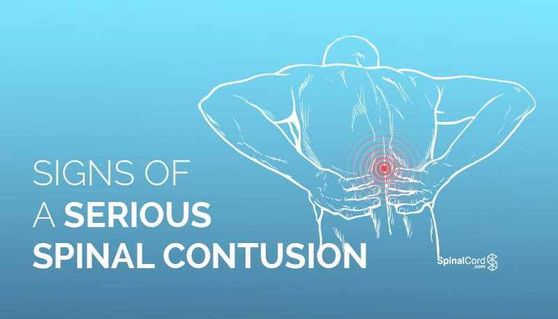 signs of a serious spinal contusion