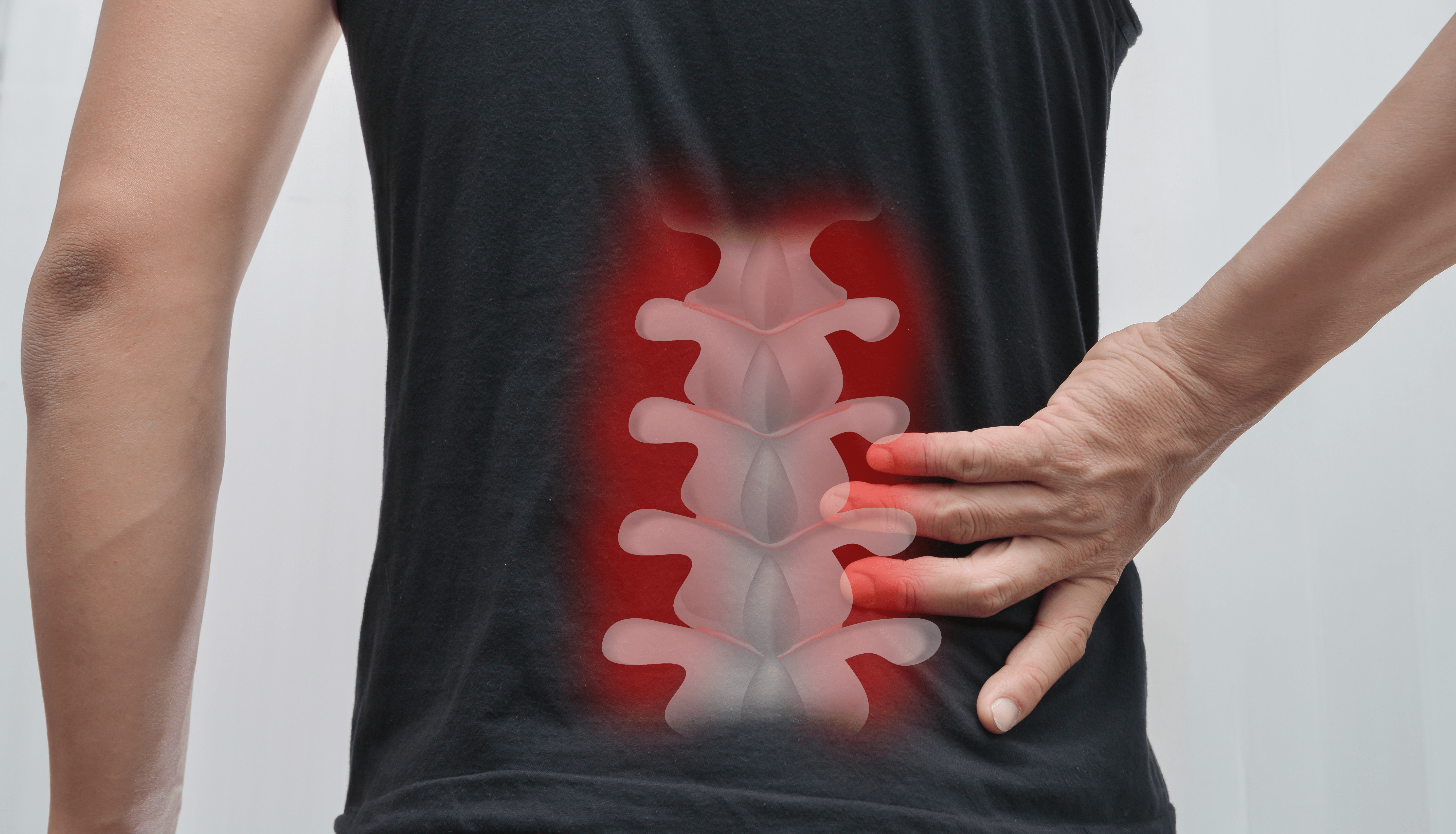 spasticity-after-spinal-cord-injury