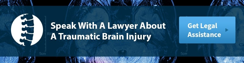 Legal Help for a Traumatic Brain Injury
