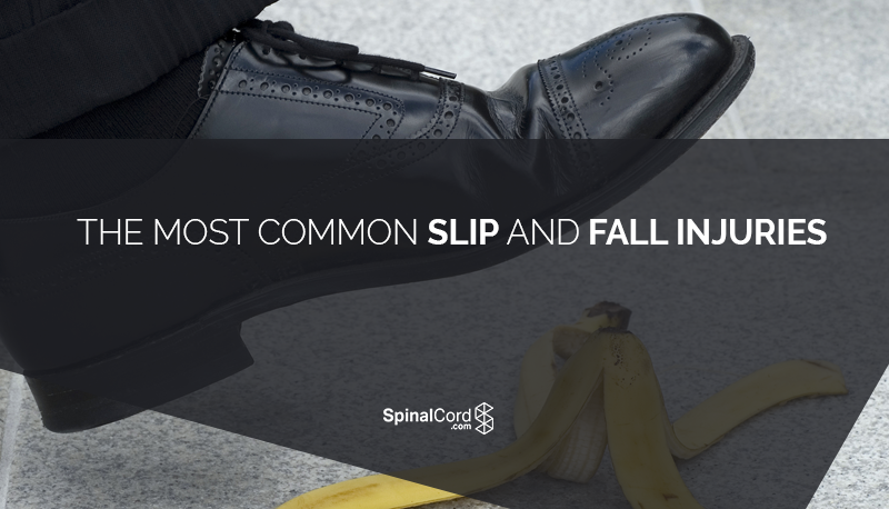 The-Most-Common-Slip-and-Fall-Injuries-Blog-IMG-1.png