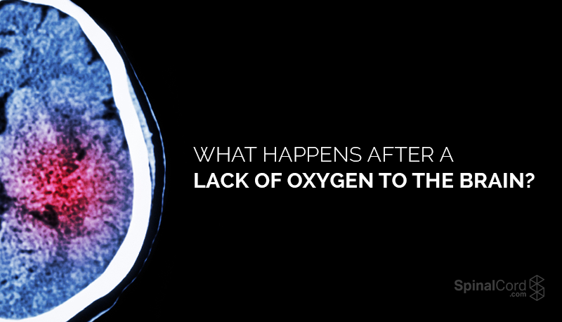 What Happens After A Lack of Oxygen to the Brain?